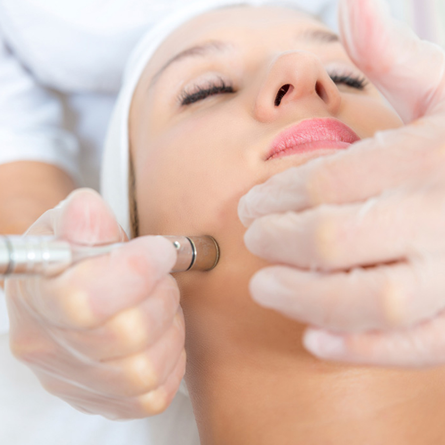 Face Microneedling