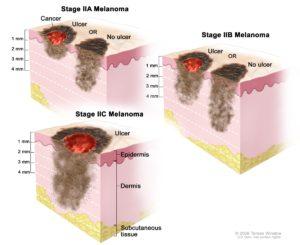 Deep melanoma