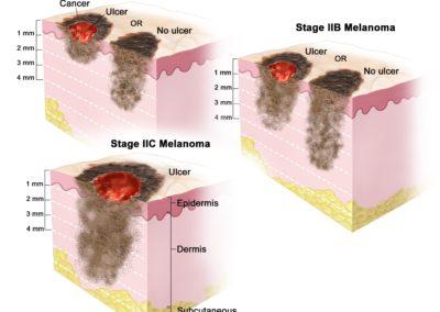 deep-melanoma