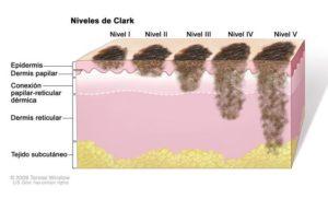 Melanoma progression