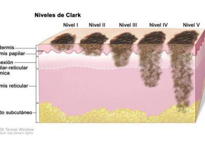 progression-of-melanoma