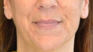 Dermal Fillers   Russak Dermatology NYC