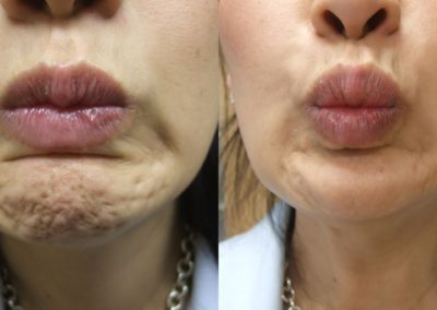bbefore-and-after-botox-in-the-chin