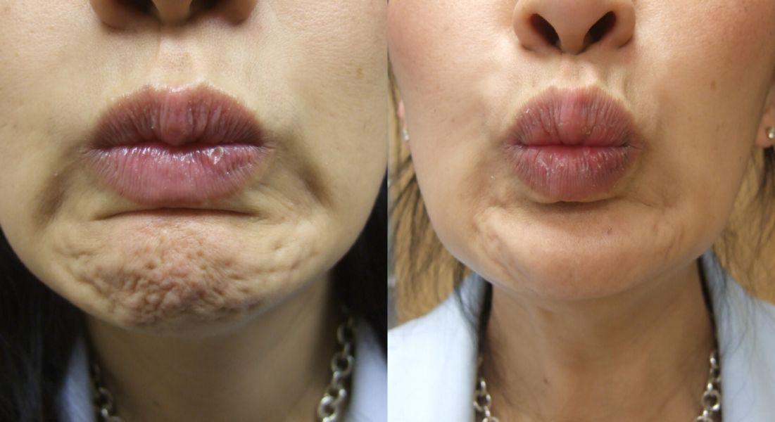 Botox and Dysport Cosmetic in New York City, Manhattan   Russak